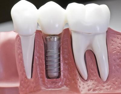 implant_