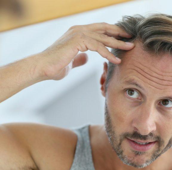 τριχόπτωση-ή-αραίωση-μαλλιών-δες-πώς-θ