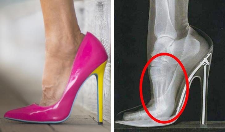 e361b543e64 Ναι, οι γυναίκες αγαπάμε τα ψηλά τακούνια επειδή φαίνονται υπέροχα και  κάνουν τα πόδια μας πιο ελκυστικά, αλλά η ζημιά μπορεί να είναι μεγαλύτερη  από ό,τι ...