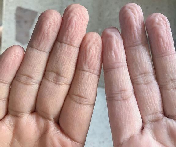 γιατί-ζαρώνουν-τα-δάχτυλα-όταν-μένουν